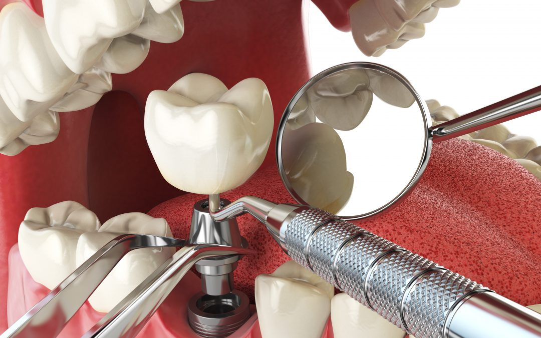 Is an implant the best option for me?